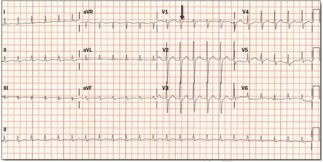 Here is an example of an ECG of AVNRT